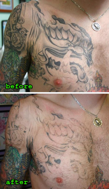 laser tattoo removal cost