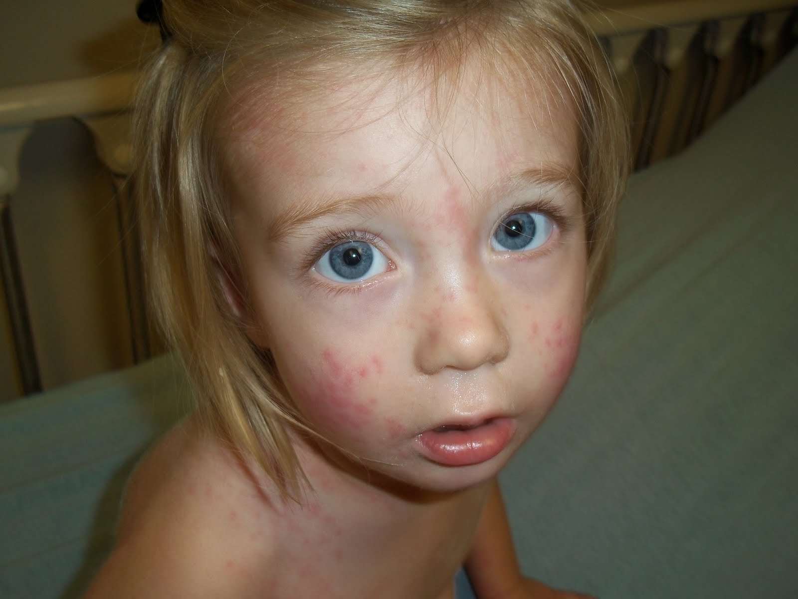 Infant, Toddler and Children, Rashes - Ask Dr. Sears