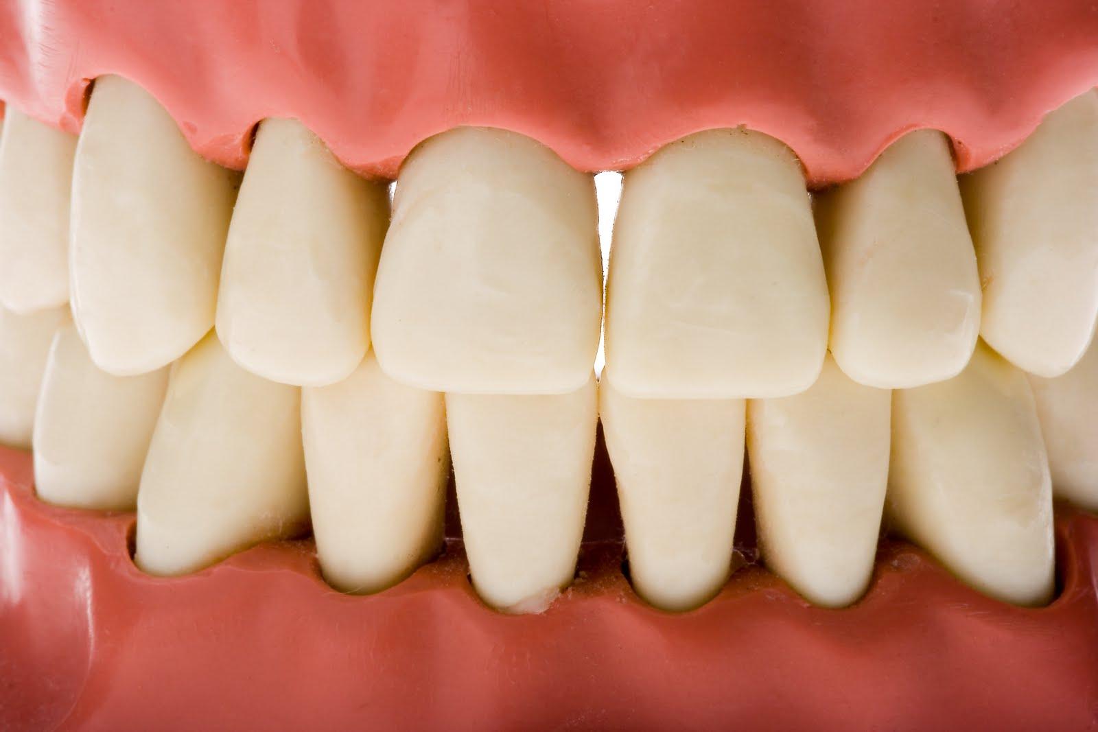Resultado de imagen de diabetes y dientes
