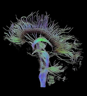 Brain fibre tracks