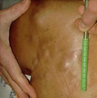 Rawatan Alternatif Moden Bagi Penyakit Kanser Kanser Payudara B17