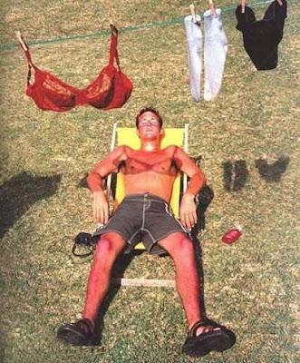 Embarrassing sunburn