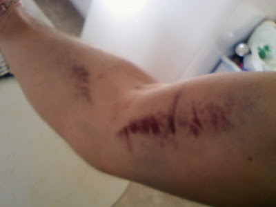 broken arm bruise. arm started ruising and