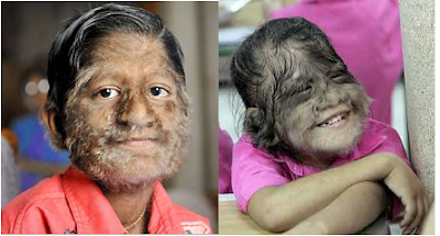 8 - Hypertrichosis - Weird and Extreme
