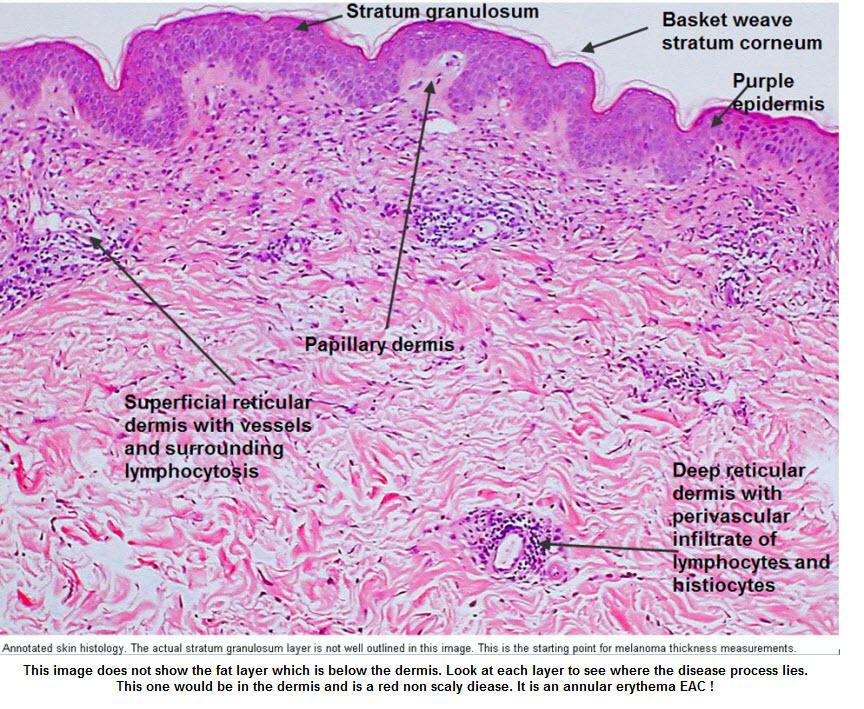 Dermatopathology | DermNet New Zealand
