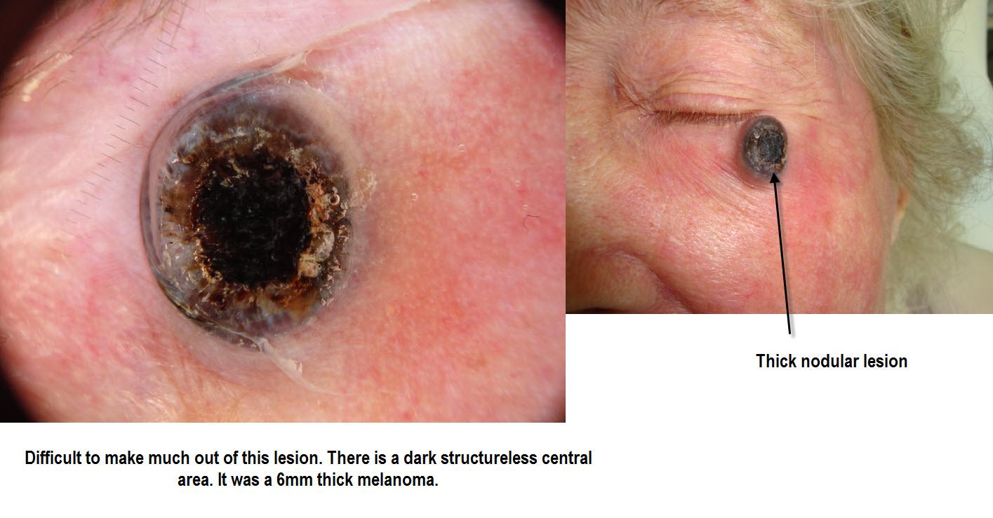 Dermatoscopie - Huidziekten.nl (Dermatologie)