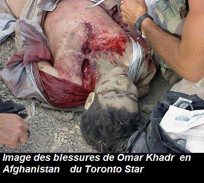 http://2.bp.blogspot.com/_5Dvdo6a5iBU/SwLZOKgtlKI/AAAAAAAAGaw/_dZjYvA3xQg/s1600/omar_khadr_wounded.jpg
