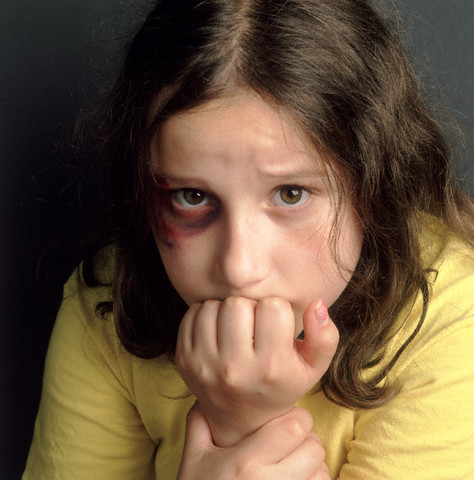 professionals have seen a child they suspect was being physically abused