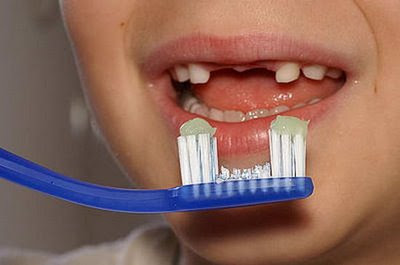 sesuaikan sikat gigi anda dengan kondisi gigi...... hihihi