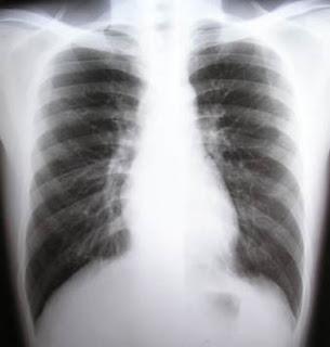 Duele la parte izquierda del cuello y la garganta tragar