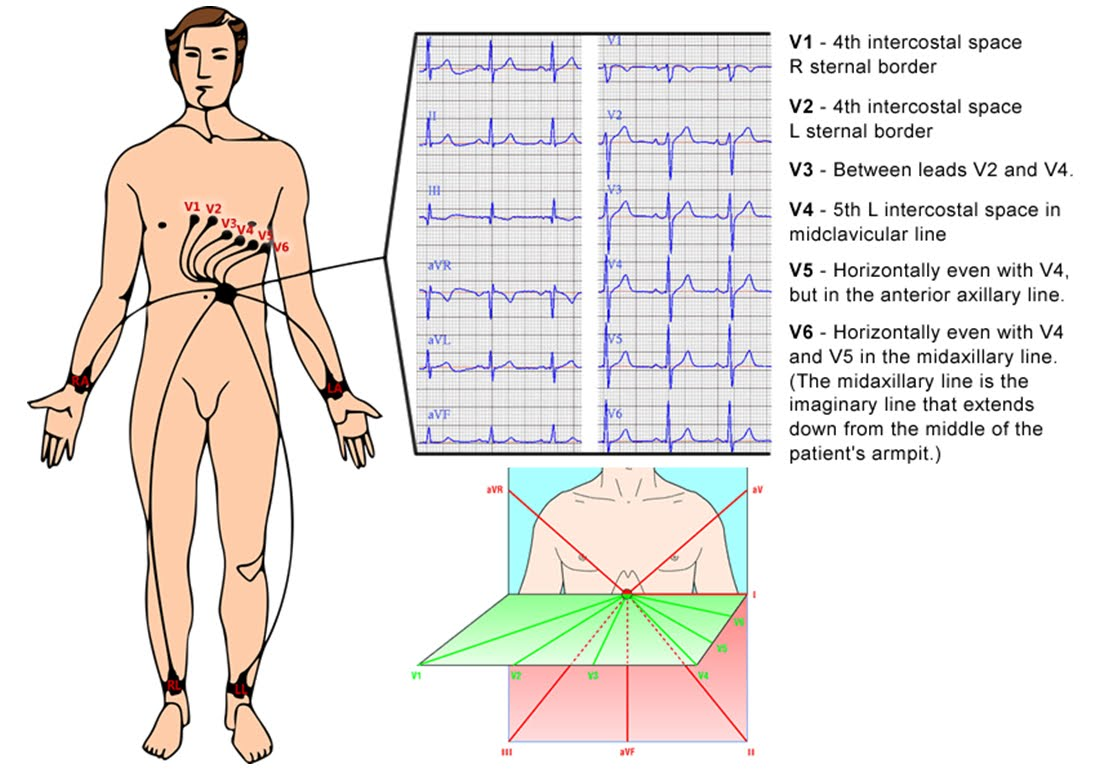 And the corresponding normal ecg trace for the standard 12 lead ecg