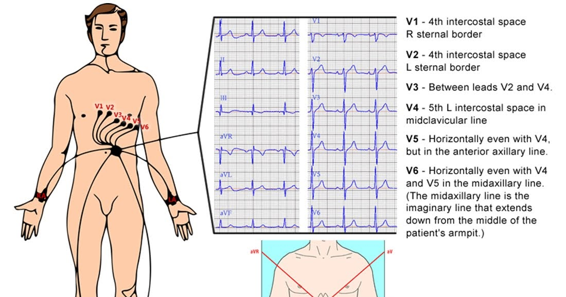 A quick guide to ecg ivline for Angolo del louis
