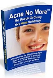 Curing Your Acne Holistically