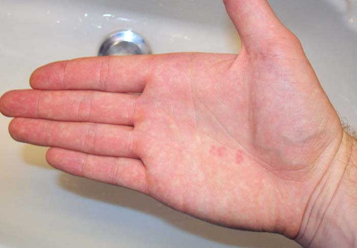 red spots on palm of hand