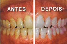 Perfil Odontologia Causas Do Dente Escuro E Como Clarear