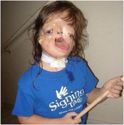 gadis tanpa kerangka muka