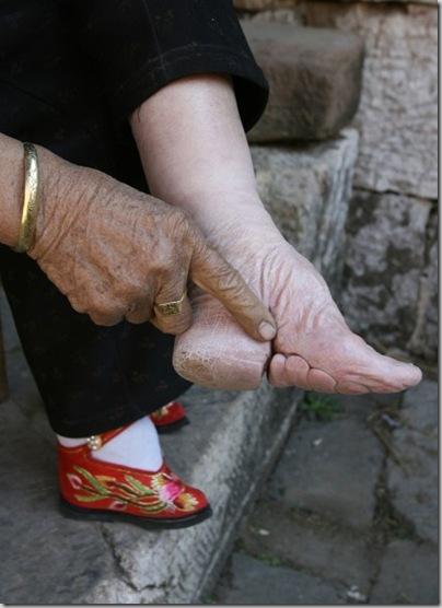 [1.+Sapatos+que+moldam+os+pés.02.jpg]