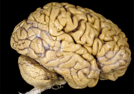 http://2.bp.blogspot.com/_5bgvGHDHSrM/S7L1Xy-SlHI/AAAAAAAAARk/m0nvMzdf-aQ/s1600/human-brain-vis304784-ga.jpg
