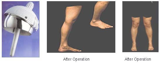 infected surgical wound of total knee replacement nursing essay Essay paper on total knee replacement surgery people undergo total knee replacement when arthritis or after the operation, there can be wound infection.