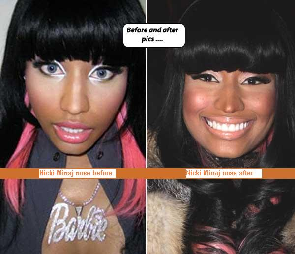nicki minaj before and after plastic surgery. nicki minaj before surgery and