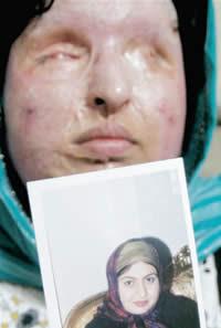 Ameneh Bahrami pós ataque