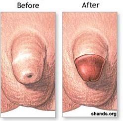 fotos de penes con sida