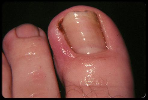 Воспаление ногтя большого пальца ноги при грибке