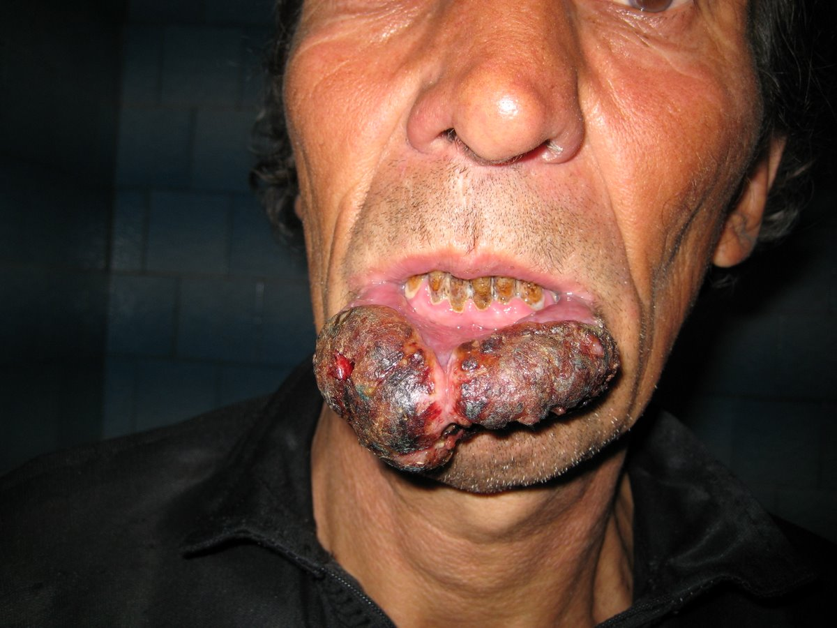 Effects of smoking cancer