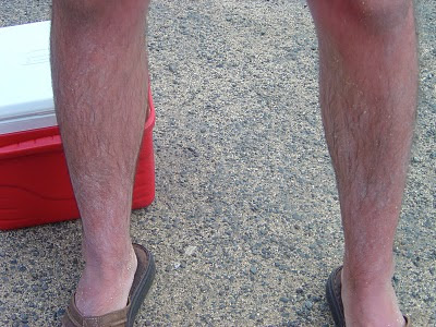 Sunburned legs in Waikiki, Hawaii