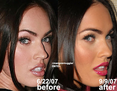 megan fox plastic surgery nose. Megan Fox Plastic Surgery Nose