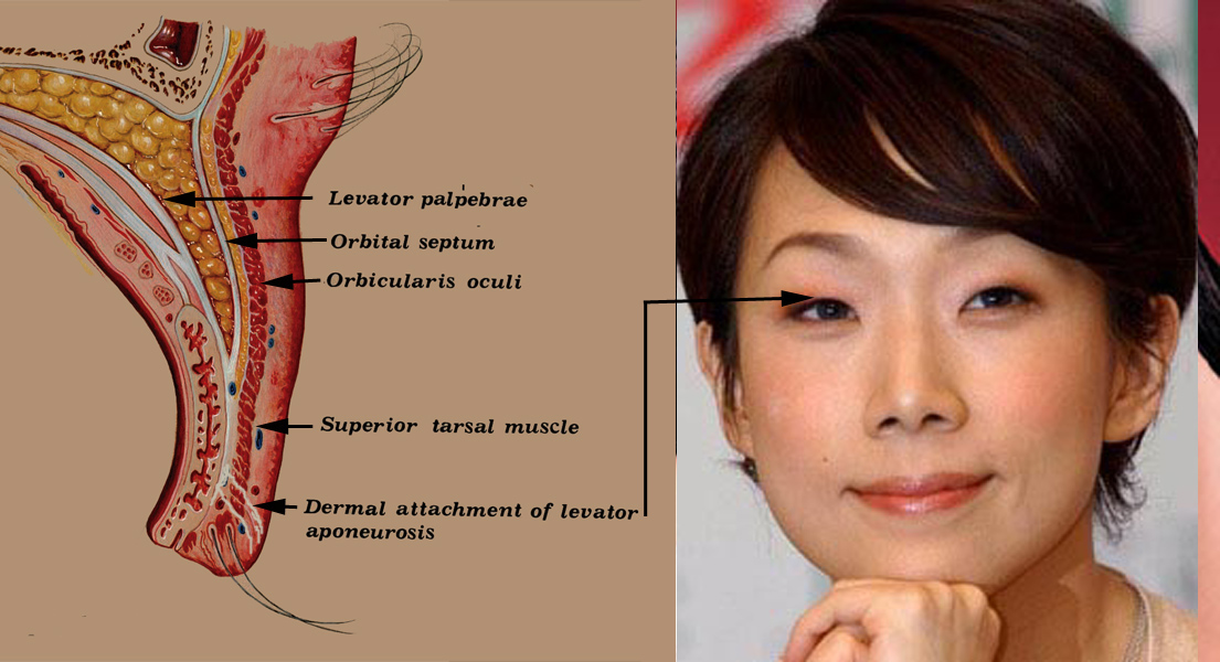 Eyelid Surgery by Prof Dr CN CHUA 蔡鐘能: The Unique Features of ...