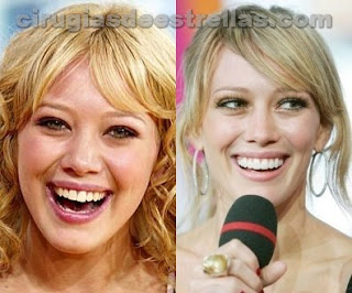Hilary Duff antes y despues