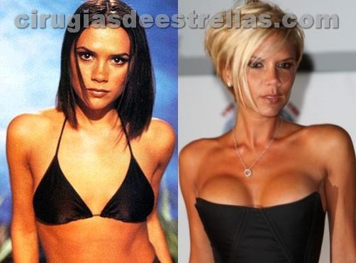 Aumento de senos de Victoria Beckham