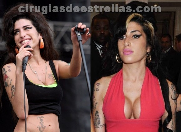 Implante de senos de Amy Winehouse