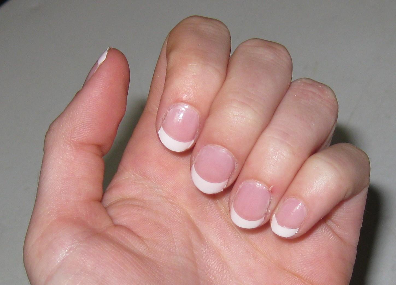 dyshidrotic eczema images #10
