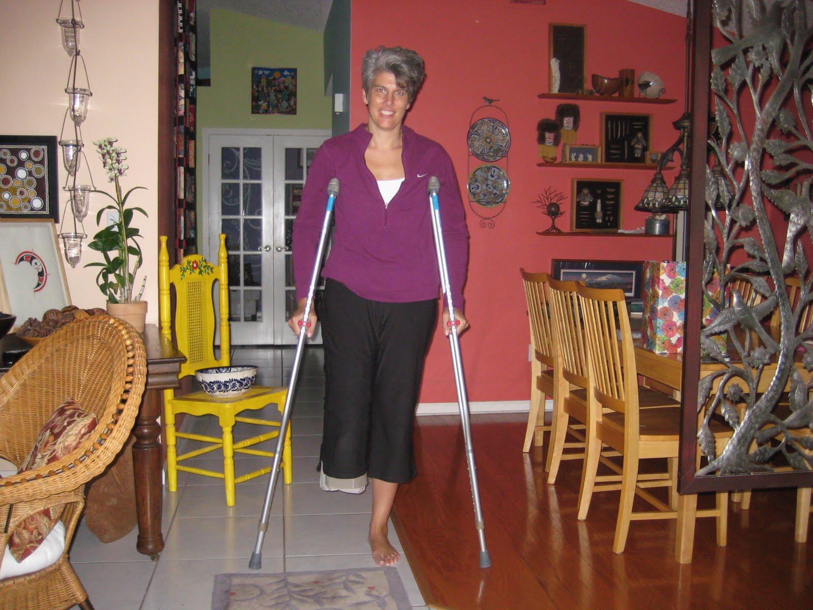 Women with Leg Amputee Short Stumps