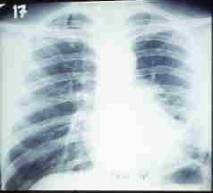Por que cursos curar varikoz