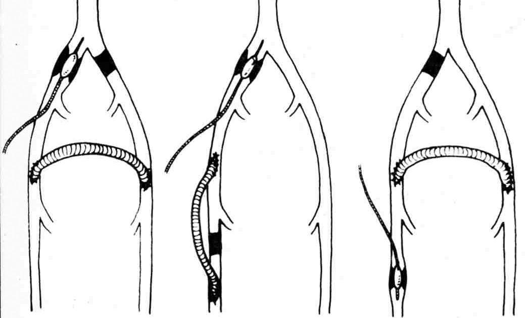 Las clínicas de la cirugía vascular en tashkente