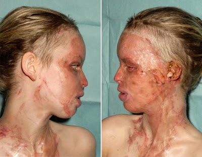 Katie Piper model after acid attack pictures
