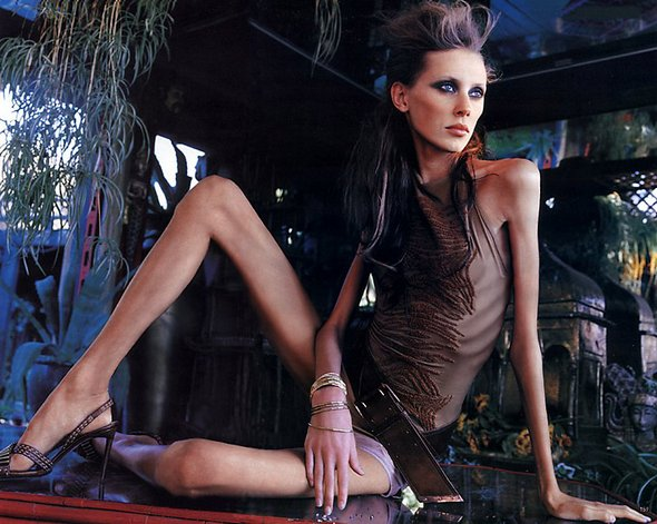 anorexic models. Anorexic Models don#39;t Always