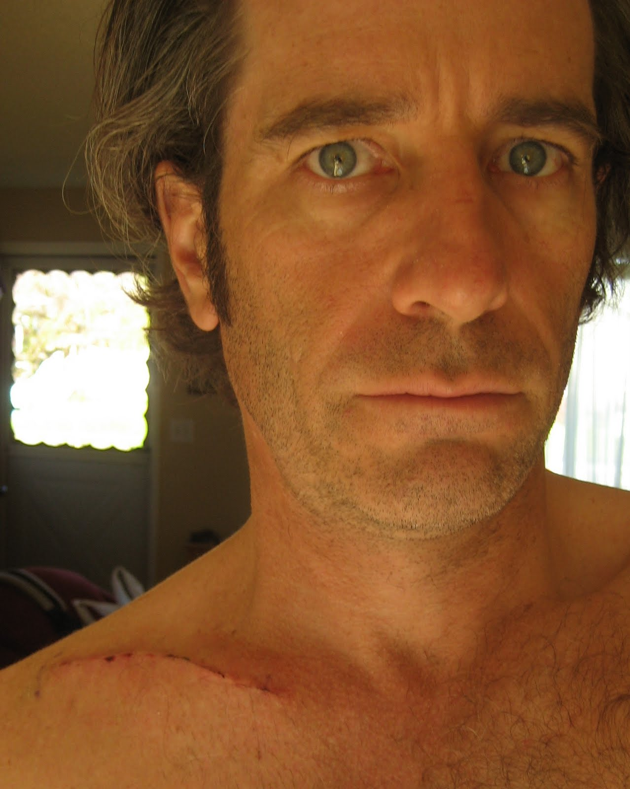 Mike McQuaide: THREE WEEKS (now YEARS) SINCE COLLARBONE SURGERY