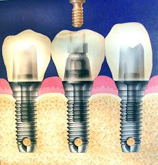 Coronas de Porcelana sobre Implante