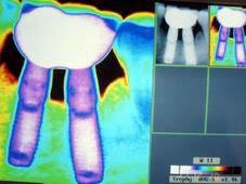 Dos Implantes para un Molar