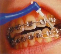 Unipenacho en Aparatos de Ortodoncia
