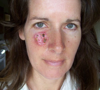 Mohs Surgery as a Skin Cancer Therapy