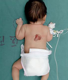 Nace con un pene en la espalda