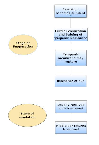 guideline of diagnosis of otitis media