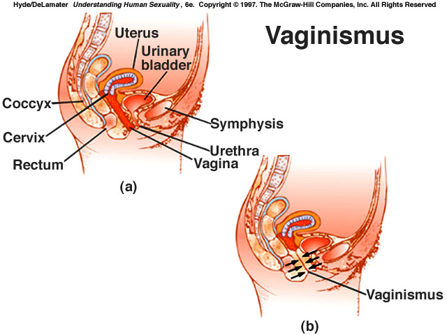 Vaginismus Is The Instantaneous Involuntary Tightening Of The Pelvic Floor Muscles In Anticipation Of Vaginal Penetration This Reaction Will Occur If