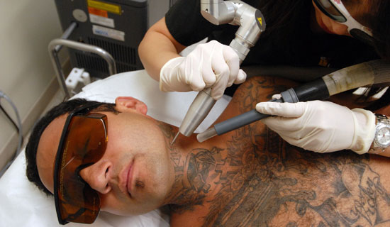 Modern technology and skin care methods have brought tattoo removal