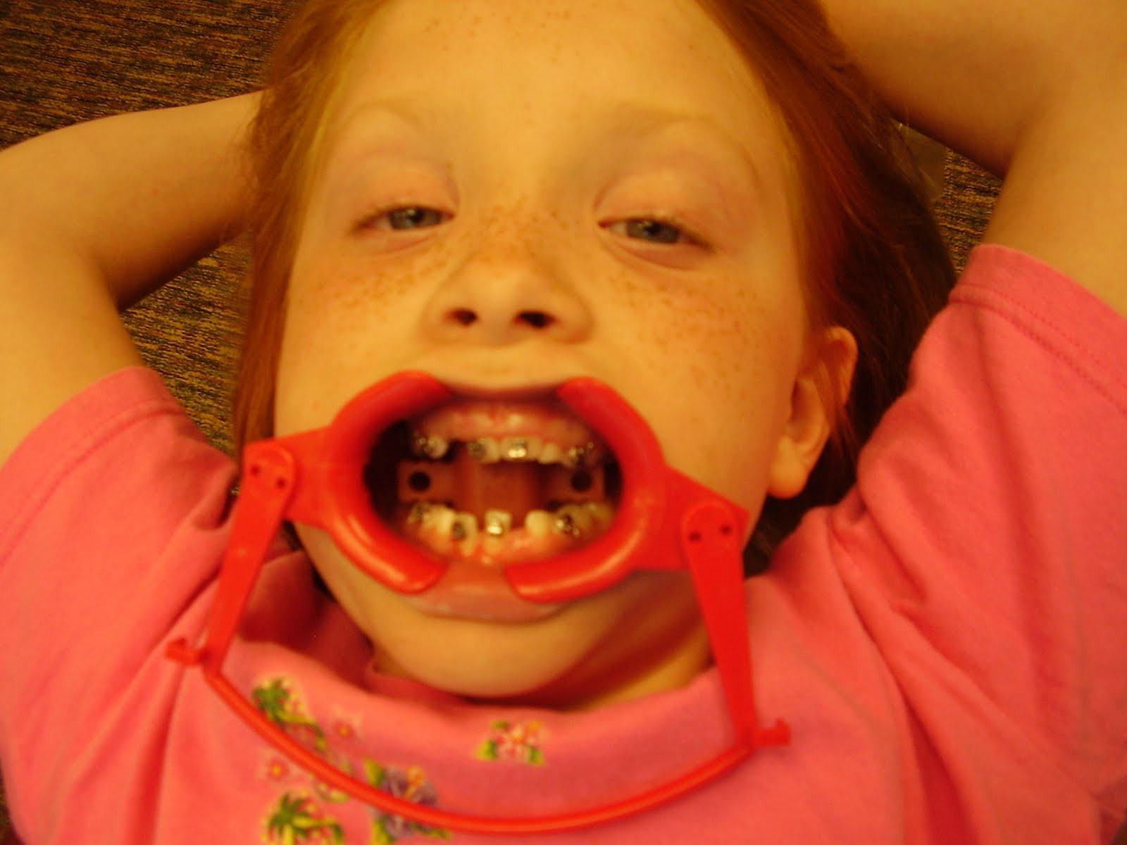 P.S. from Ar... Peyton Orthodontics